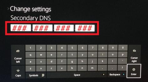 تنظیم DNS در ایکس باکس